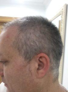 injerto capilar turquia