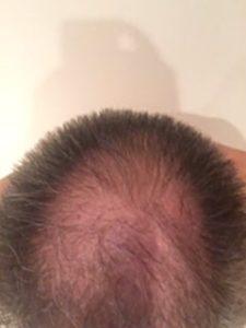 injerto de pelo